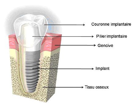 chirurgie dentaire casablanca implantologie implants bicon casablanca. Black Bedroom Furniture Sets. Home Design Ideas